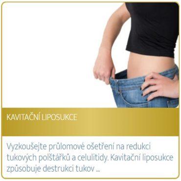 Kavitační liposukce