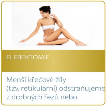 Flebektomie