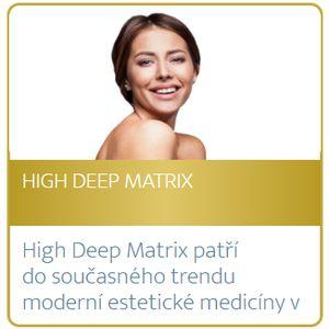 High Deep Matrix