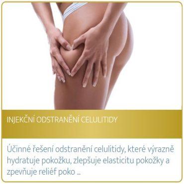Injekční odstranění celulitidy