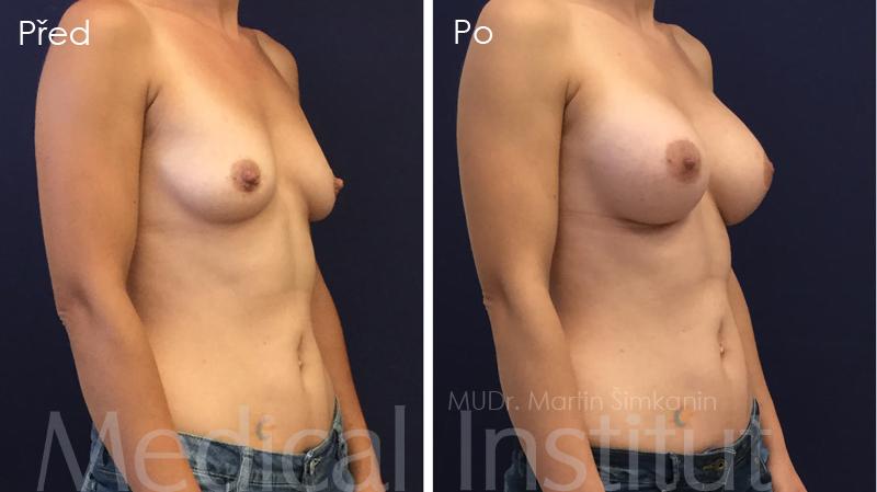 Zvětšení prsou - Medical Institut - Plzeň - implantáty Motiva