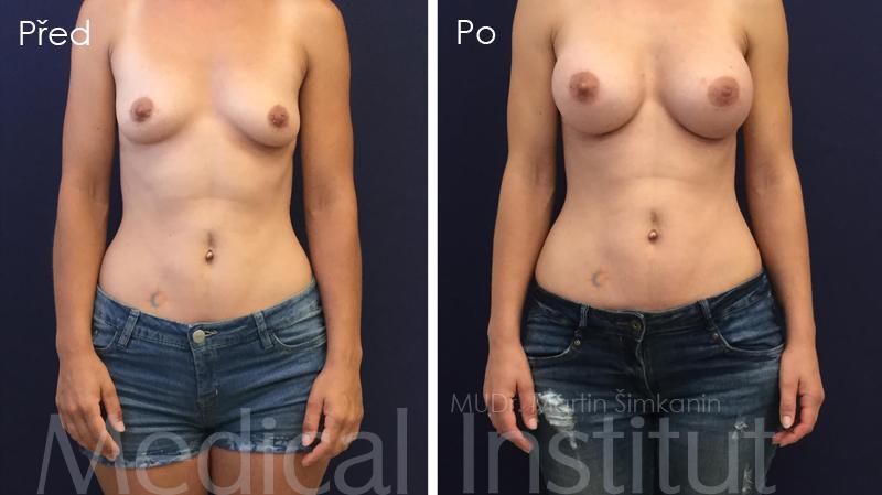 Zvětšení prsou implantáty Motiva - Medical Institut Plzeň