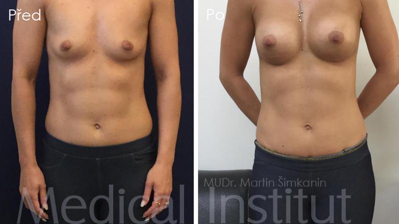 Zvětšení prsou implantáty Motiva - Medical Institut - Plzeň
