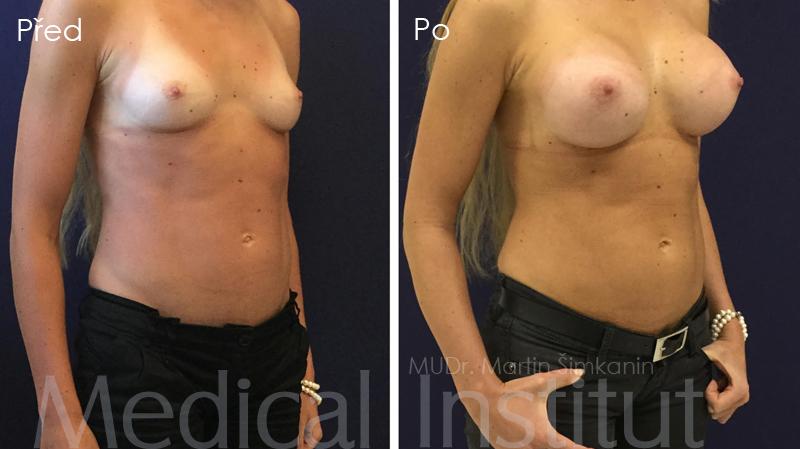 Zvětšení prsou implantáty Motiva - Medical Institut