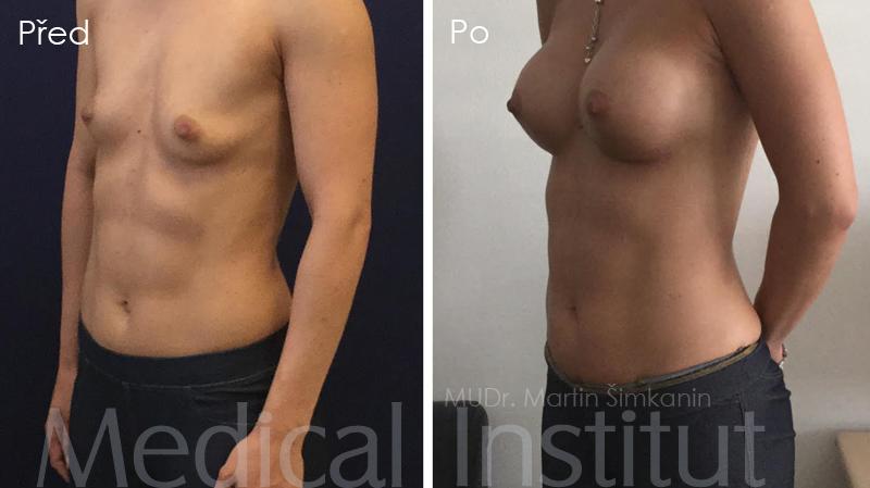 Zvětšení prsou implantáty Motiva - Plzeň