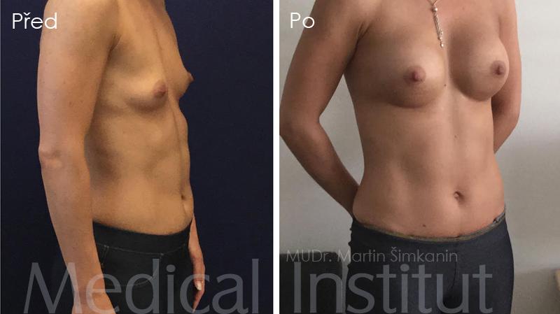 Zvětšení prsou implantáty Motiva - plastická chirurgie Medical Institut