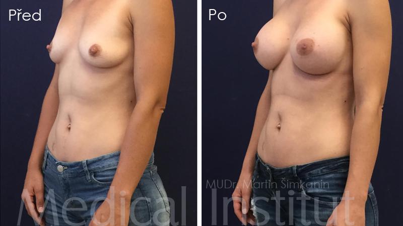 Zvětšení prsou implantáty Motiva v Plzni