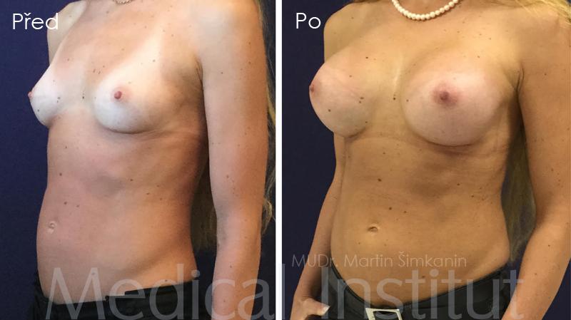 Zvětšení prsou - prsní implantáty Plzeň - Medical Institut