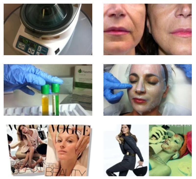 Kosmetické služby v Medical Institut chemický peeling