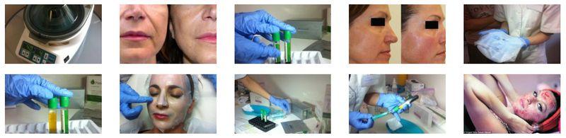 Kosmetické služby v Medical Institutu Plzeň - chemický peeling