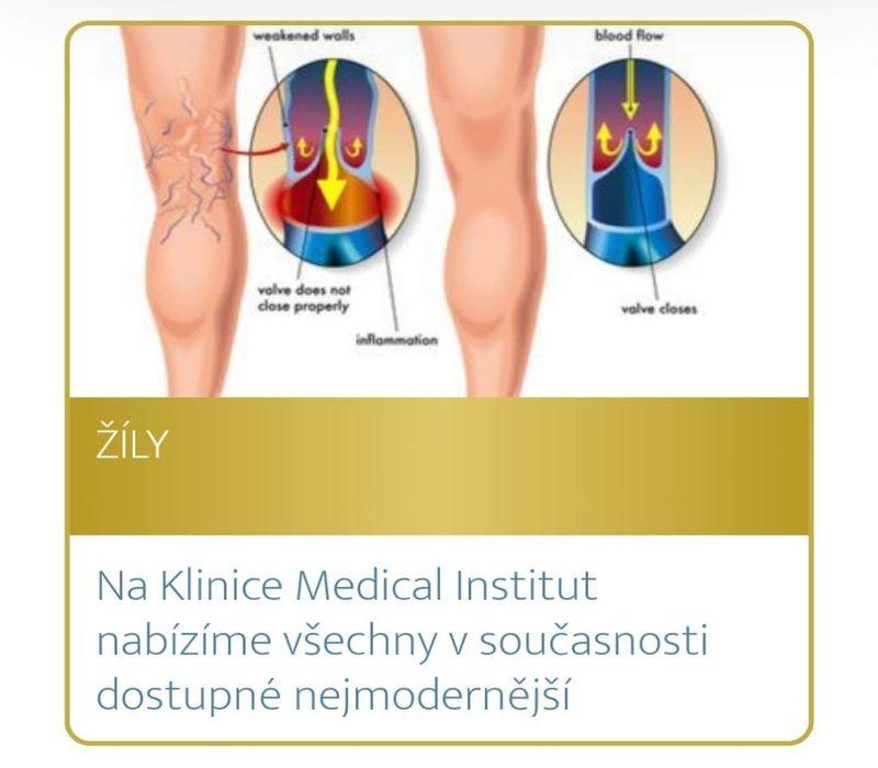 Podzimní akce Medical Institutu Plzeň - žily