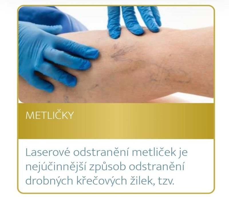 Podzimní akce Medical Institutu Plzeň - metličky