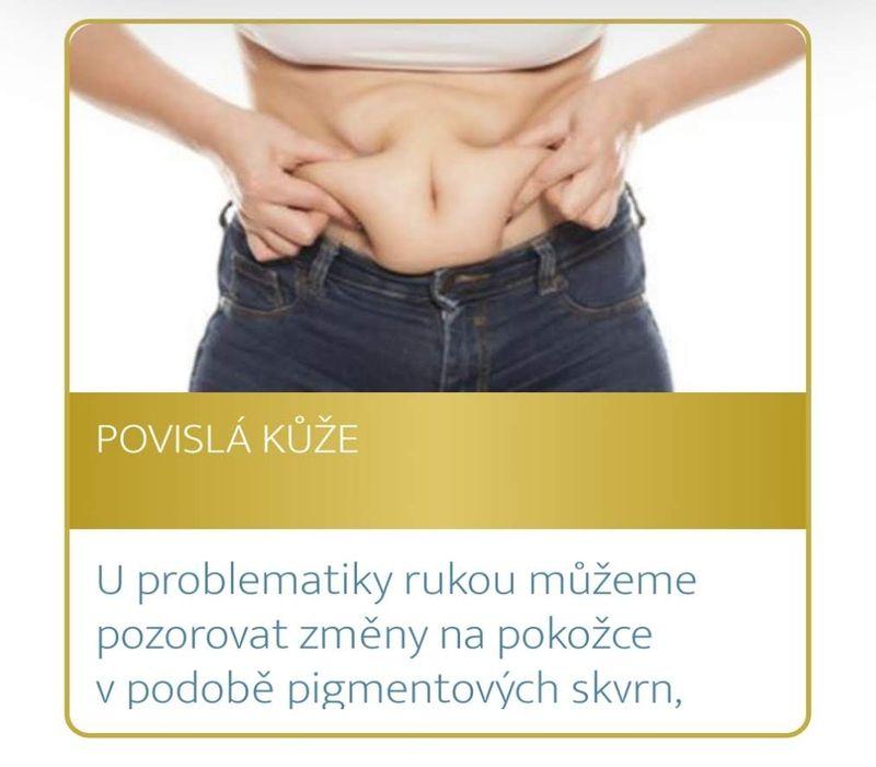 Podzimní akce Medical Institutu Plzeň - povislá kůže